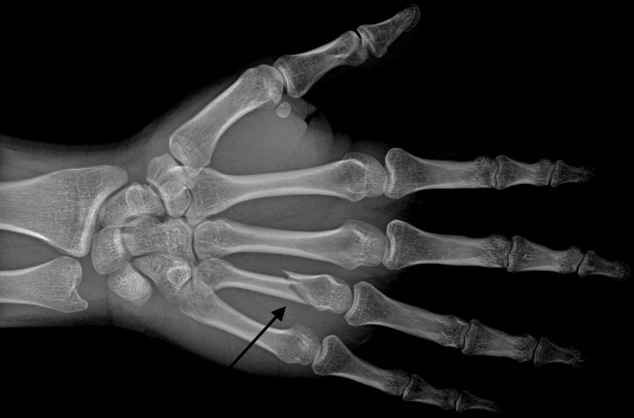 numbered metacarpals bone - HD1295×854